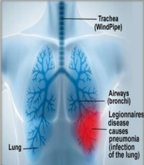 Legionnaires' Disease as seen in the lungs